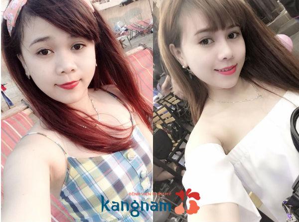nang-mui-co-bi-keo-mat-khong-3