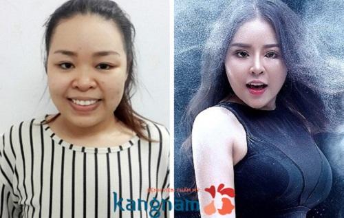 Khách hàng tại Kangnam chia sẻ sau nâng mũi nên kiêng gì?