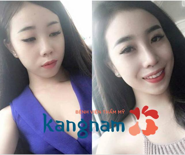 Xinh đẹp hơn với kết quả nâng mũi cấu trúc tại Kangnam