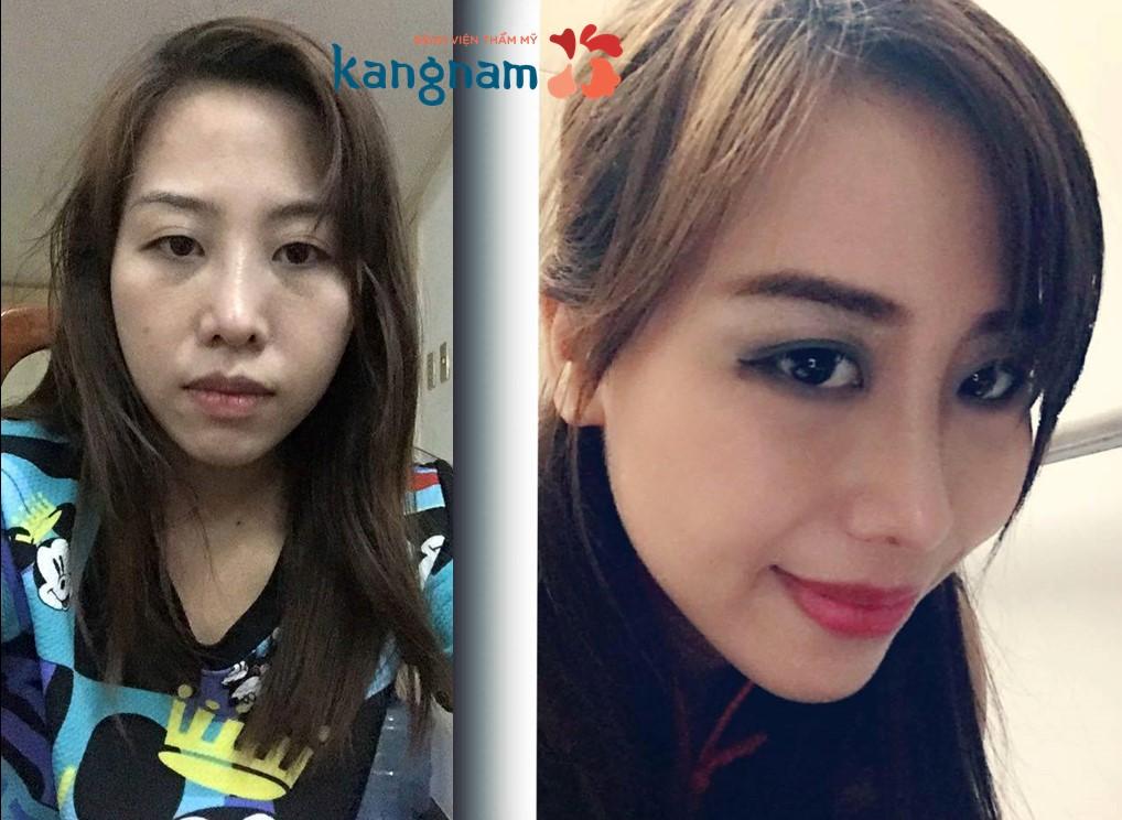 Blogger Fun Fun chia sẻ kết quả sau nâng mũi S line tại Kangnam