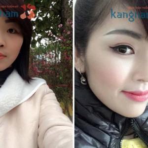 """""""Tôi hài lòng với kết quả sửa mũi ngắn hếch tại Kangnam"""" – Nguyễn Ngọc Hà"""