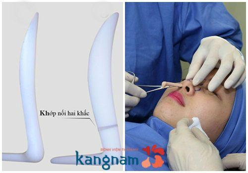 Tiến hành phẫu thuật nâng mũi Hàn Quốc