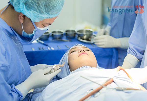 Phẫu thuật mũi Hàn Quốc tại Kangnam sử dụng sụn sinh học cao cấp