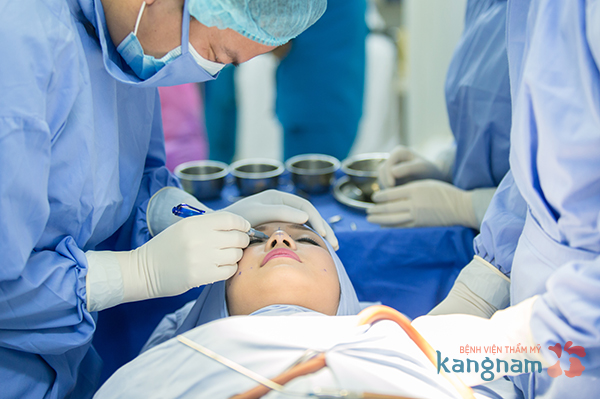 Quy trình thu gọn cánh mũi nội soi có đảm bảo không?