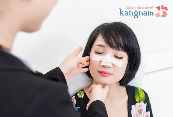 Tiến hành thu gọn cánh mũi: nội soi