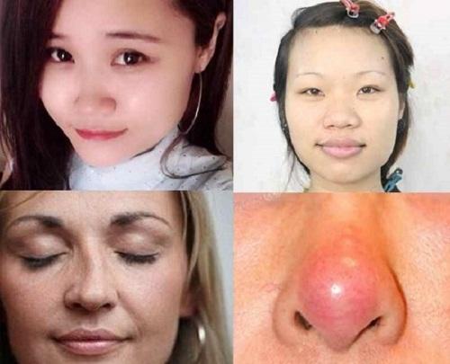 Giá nâng mũi bằng sụn khá cao nhưng không khắc phục được mọi nhược điểm của chiếc mũi