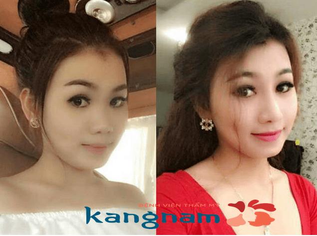 Trước và sau khi thu nhỏ đầu mũi tại kangnam