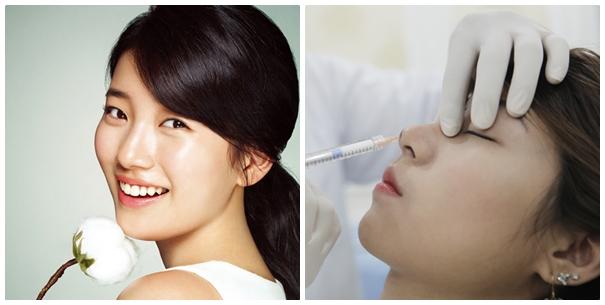 Nâng mũi không phẫu thuật có an toàn? 1