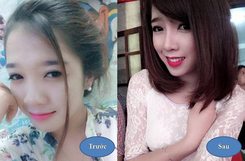 Nâng mũi S line 3D: Xu hướng thẩm mỹ Hot Hàn Quốc 2016 1