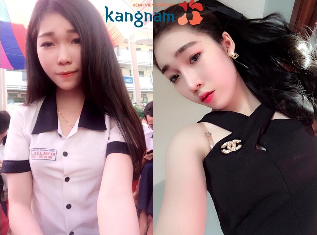 Trước và sau khi nâng mũi tại thẩm mỹ viện kangnam
