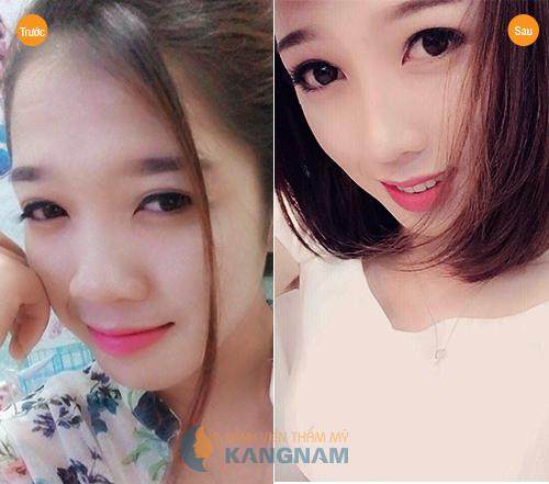 Khách hàng Kanngnam chia sẻ phẫu thuật nâng mũi S line bao lâu hết sưng?