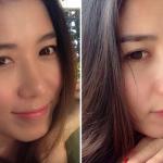 Phẫu thuật nâng mũi S line bao lâu thì đẹp tự nhiên?