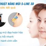 Mũi gãy là thế nào? Cách khắc phục mũi gãy hiệu quả nhất?