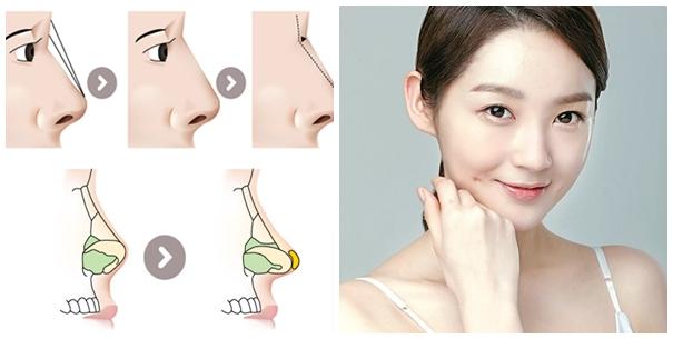 Nâng mũi Sline 4D bao lâu thì hồi phục 1