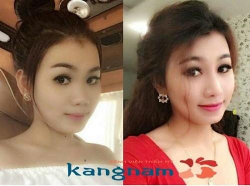 Kết quả hình ảnh cho site:nangmuidep.vn nâng mũi ở đâu đẹp