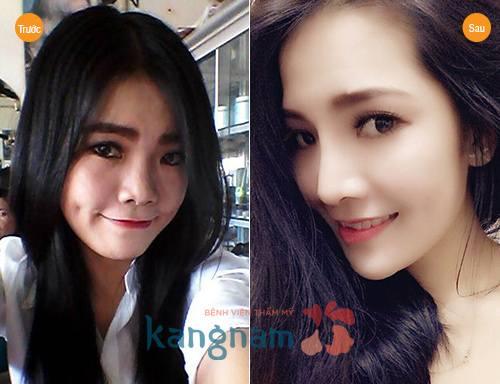 nang-mui-su-dung-duoc-bao-lau-co-duoc-vinh-vien-khong2211