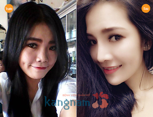 Kết quả hình ảnh cho site:nangmuidep.vn nâng mũi hàn quốc