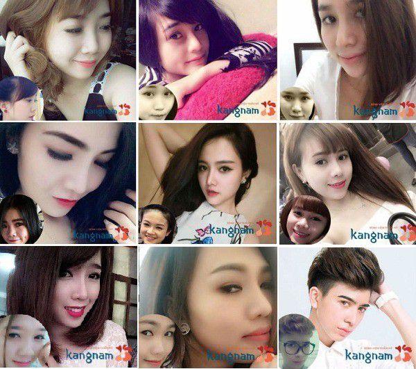 Các khách hàng nói gì về nâng mũi tại Bệnh viện thẩm mỹ Kangnam?