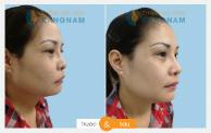Kết quả 4 Phẫu thuật nâng mũi thẩm mỹ tại kangnam