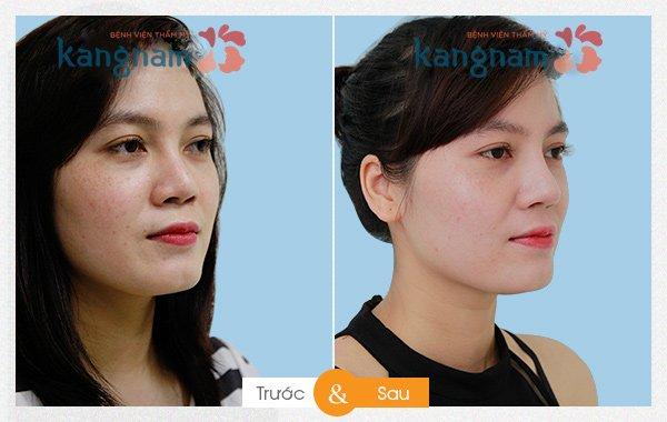 Kết quả 2 Phẫu thuật thẩm mỹ nâng mũi tại kangnam