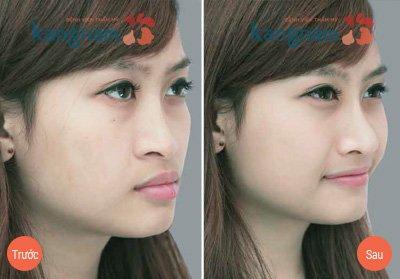 Kết quả 3 Phẫu thuật nâng mũi tại kangnam