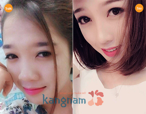 nang-sua-mui-co-anh-huong-gi-den-suc-khoe-ve-sau-khong2