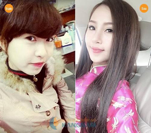 Khách hàng Kangnam xinh đẹp hơn sau nâng mũi bằng sụn nhân tạo