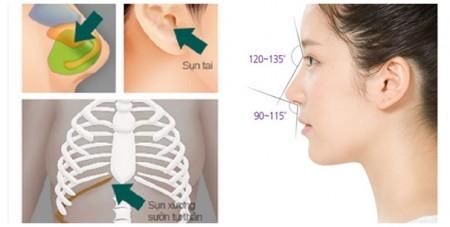 Sụn sử dụng trong nâng mũi bọc sụn.