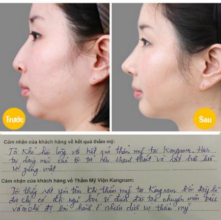 Nâng mũi không phẫu thuật có an toàn? 2