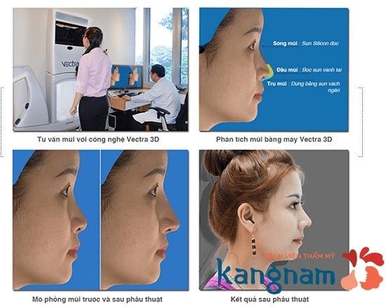 Mô hình giải đáp nâng mũi ở đâu đẹp?
