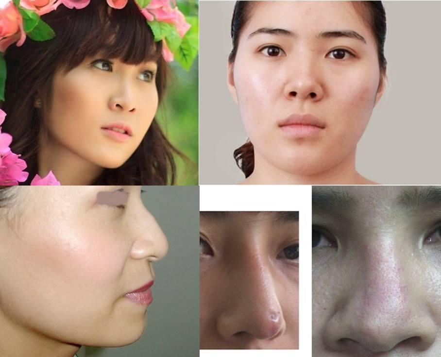 Phẫu thuật nâng mũi S line 3D áp dụng cho trường hợp nào?