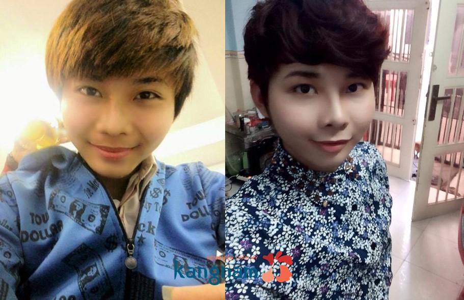 Kết quả hình ảnh cho site:nangmuidep.vn nâng mũi cho nam giới