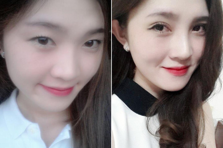 Quy trình nâng mũi Kangnam's Perfect S line: Chia sẻ của Tô Tuyết Trâm 3