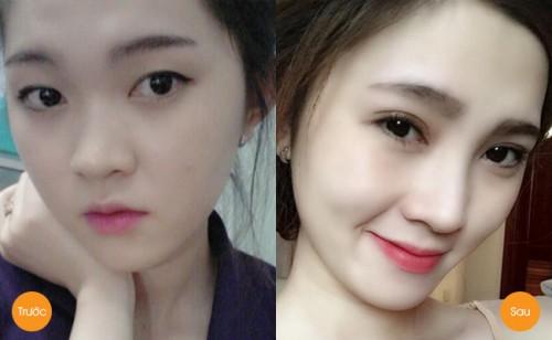 Quy trình nâng mũi Kangnam's Perfect S line: Chia sẻ của Tô Tuyết Trâm 4