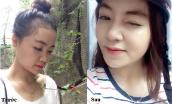 Nâng mũi bọc sụn tại Kangnam