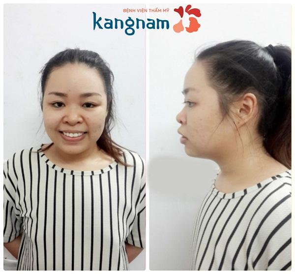 Sao Việt nói gì sau nâng mũi tại Kangnam 1