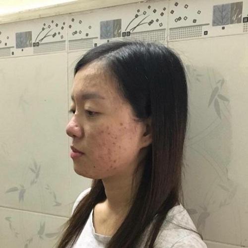 Sao Việt nói gì sau nâng mũi tại Kangnam 6