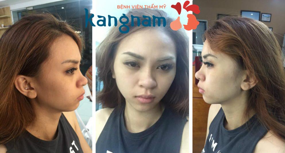 Sao Việt nói gì sau nâng mũi tại Kangnam 4