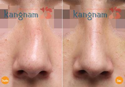 Sửa mũi bị gồ, sửa mũi lệch vẹo vách ngăn 4