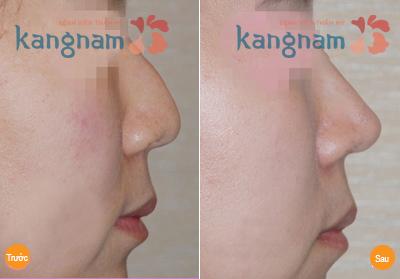 Kết quả sửa mũi gồ tại BVTM Kangnam