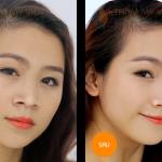 Thời gian phục hồi sau khi nâng mũi bọc sụn có lâu không?