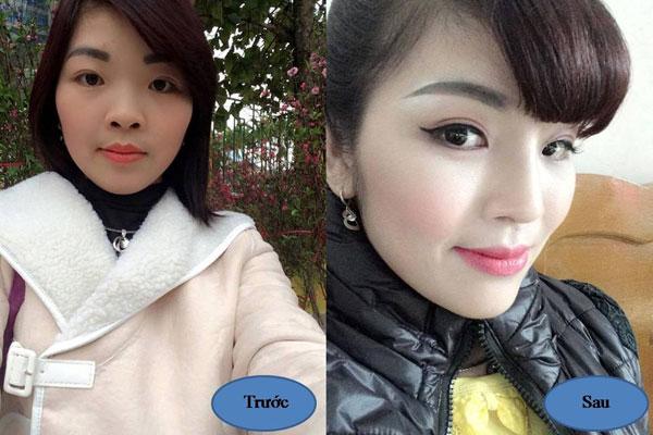 """List 5 lý do khiến nâng mũi tại Kangnam """"hút"""" khách 3"""