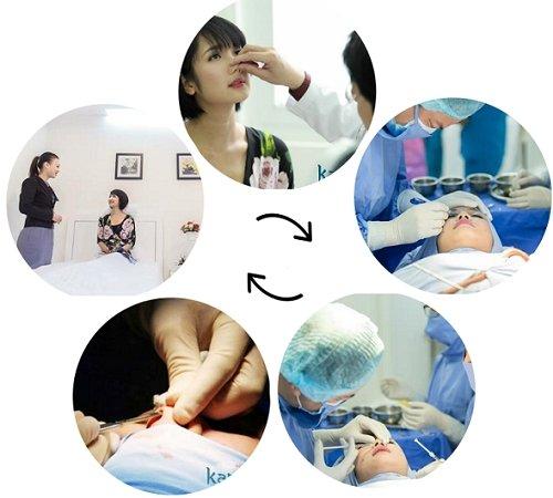 Quy trình phẫu thuật thu nhỏ đầu mũi tại Kangnam