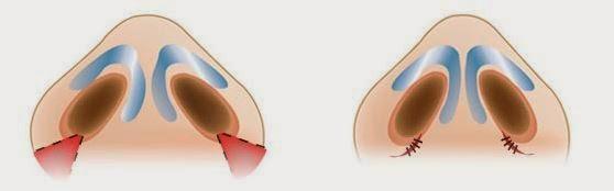 Cuộn cánh mũi ở đâu đẹp? 1