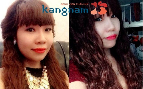 Khách hàng Kangnam chia sẻ thu gọn cánh mũi có đau không?
