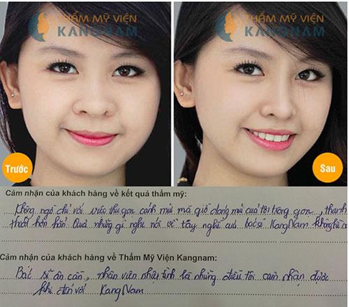 Cuộn cánh mũi có làm giảm độ cao của mũi không? 1