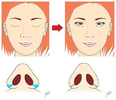 Kết quả hình ảnh cho thu gọn cánh mũi