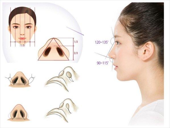 Mô phỏng quá trình thu gọn cánh mũi nội soi tại Kangnam