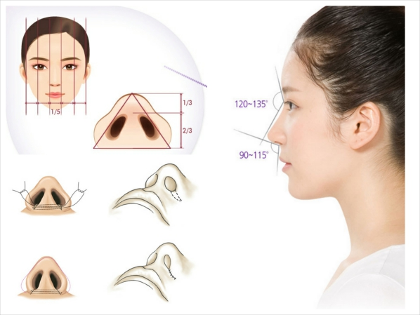 Thu gọn cánh mũi bằng căt cánh mũi hay cuộn cánh mũi