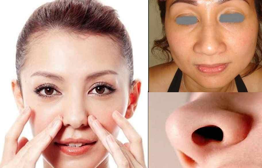Thu gọn cánh mũi áp dụng cho trường hợp nào?